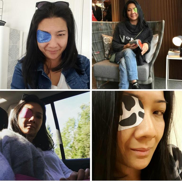 Eyepatches