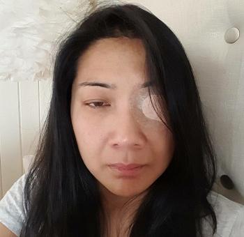 Eye patch 3 agj